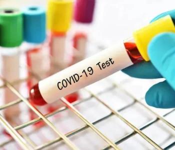 Վրաստանում հաստատվել  է կորոնավիրուսի 1409 նոր դեպք, բուժվել  է 1 256 հիվանդ